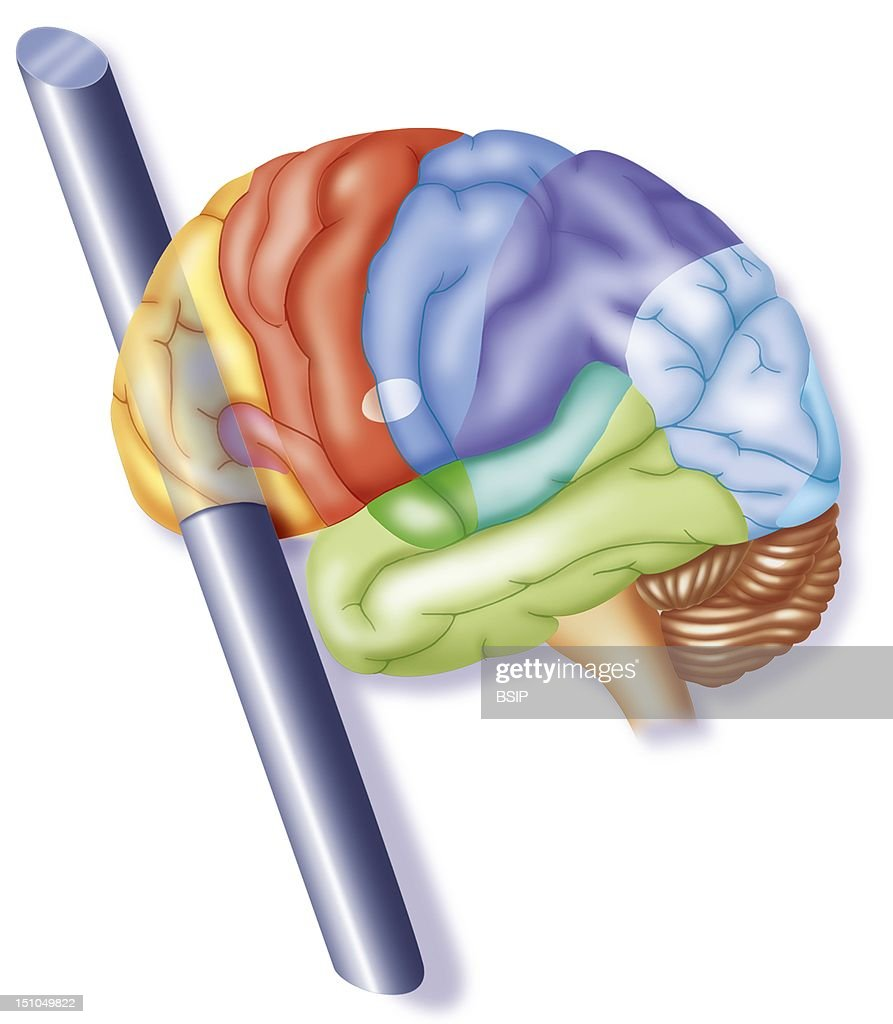 Brain, Drawing Pictures | Getty Images