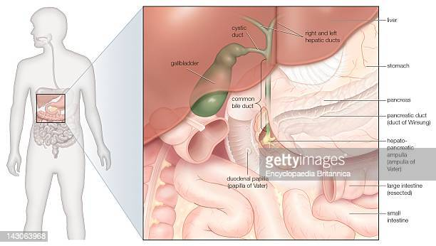 Gall bladder stock photos and pictures getty images the gallbladder and bile ducts in situ ccuart Choice Image