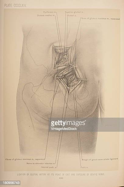 The gluteal artery can be ligated in the buttock through an incision carried in a line drawn from the posterior superior spine of the ilium to the...
