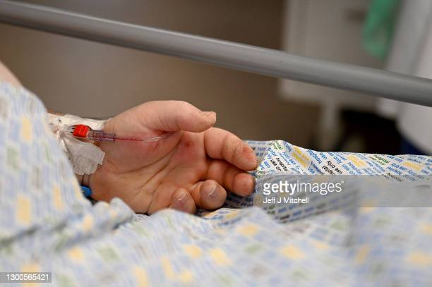 The hand of a Covid-19 positive patient is visible on the ICU ward at University Hospital Monklands on February 5, 2021 in Airdrie, Scotland. The...