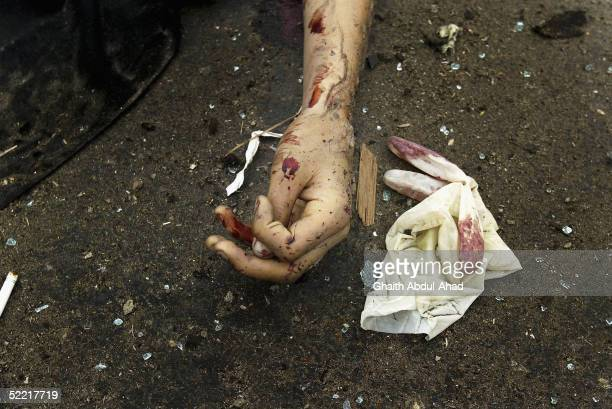 The hand of a dead Iraqi man is seen coming out from under a sheet at the scene of a bomb attack on Shiite worshipers February 19 in the Khadimiya...