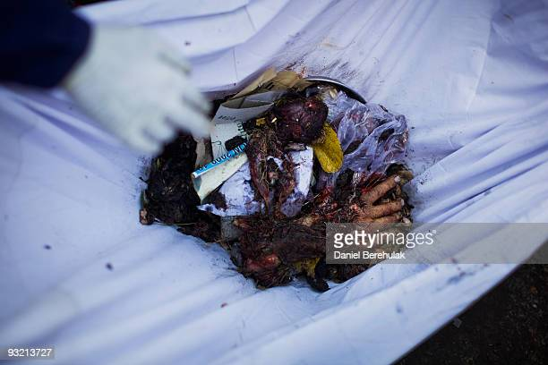 The hand of a victim found in rubble at the site of a suicide bomb blast lays in a sheet as it is collected to be taken back to the hospital on...