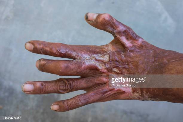 the hand was scalded - cheloide foto e immagini stock