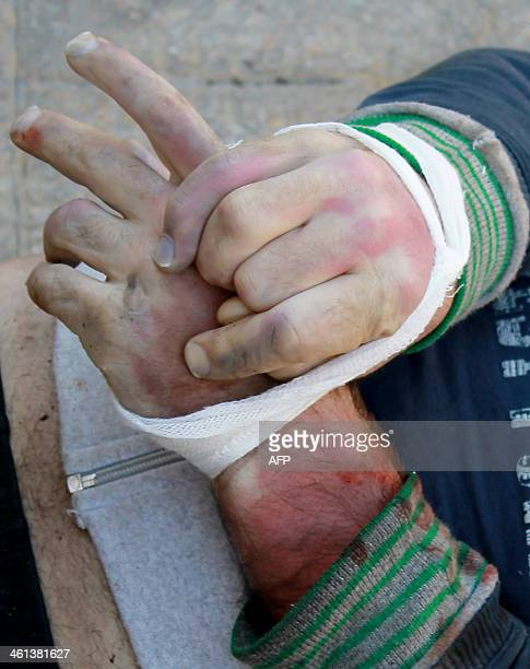 CONTENT The hands of a handcuffed dead man are seen as his body lies on the ground of the Aleppo headquarters of the Islamic State of Iraq and the...