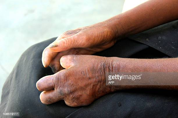 POURTIER The hands of a Madagascan woman named Mirana are seen as she sits on January 29 2011 in the main treatment center for leprosy in Tulear in...