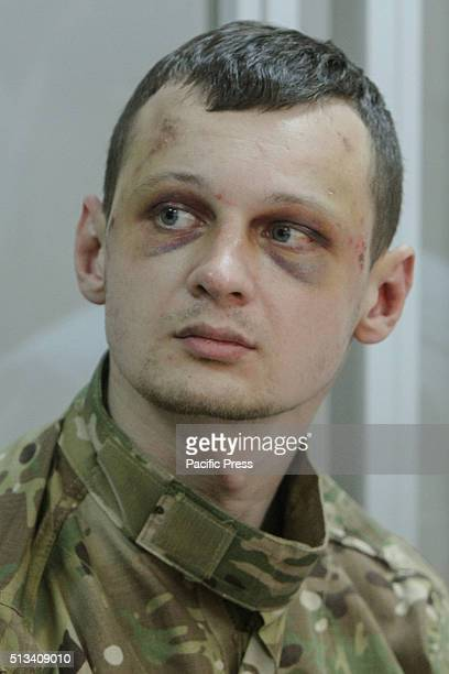 The Head of the Civil Corps AzovCrimeaStanislav Krasnov is seen with torture marks as he appears on the court hearing as judge decides for pretrial...