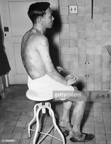 The heavy keloids which were inflicted by the Hiroshima atom bomb blast more than two years ago are still present on the body of Kiyoshi Kikkawa who...