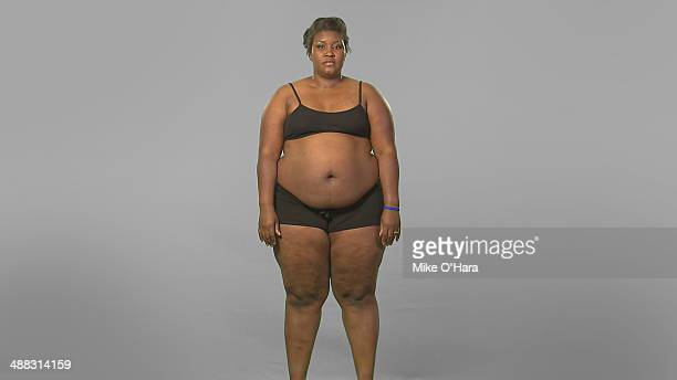 LOSS The hit series Extreme Weight Loss a unique noncompetitive show about weightloss that documents the unprecedented 365day transformation of...