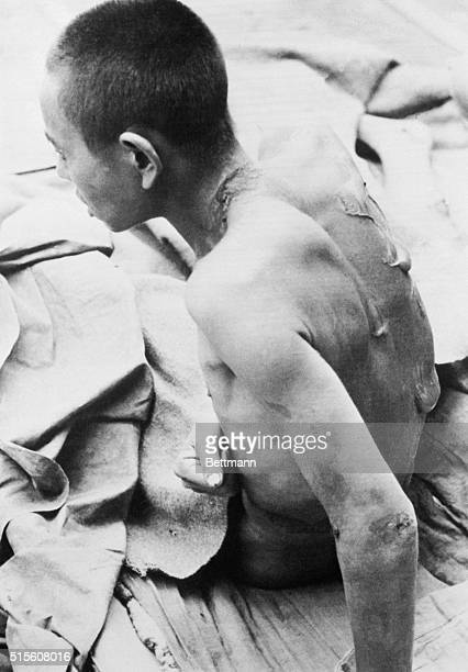 The horrible blisters raised on the back of Wei TsoKan the young Chinese machinegun platoon commander by burns from the mustard gas barrage loosed by...