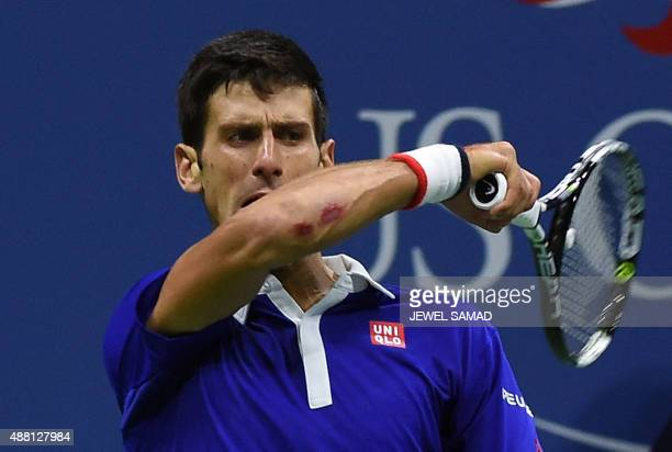 The injured elbow of Novak Djokovic of Serbia is seen as he returns the ball to Roger Federer of Switzerland during their 2015 US Open Men's singles...