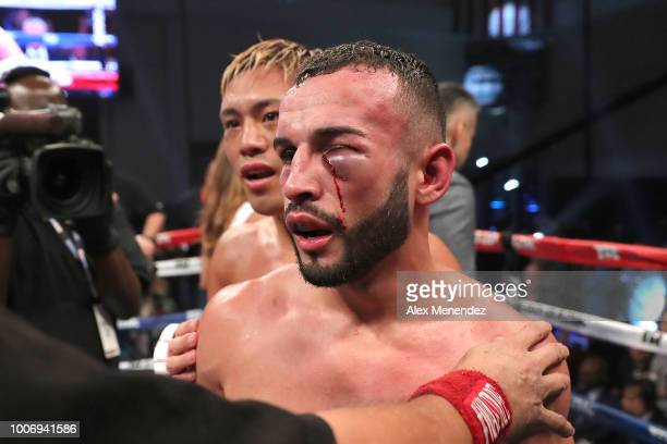 The injured eye of Christopher Diaz of Puerto Rico is evident after his loss against Masayuki Ito of Japan during the WBO Super Featherweight title...