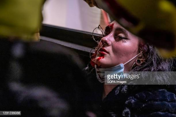 The injured woman seen bleeding. A woman facing consequences of losing an eye after being hit by a rubber bullet from the Mossos d'esquadra police...
