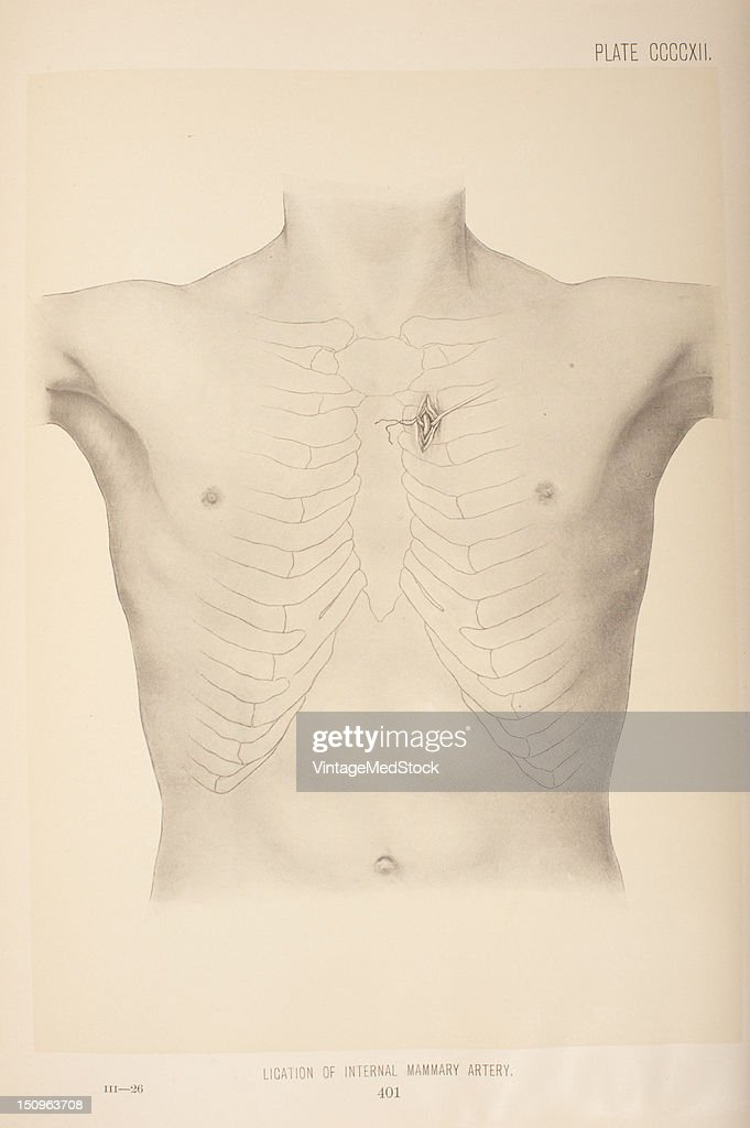 Ligation Of Internal Mammary Artery Pictures | Getty Images