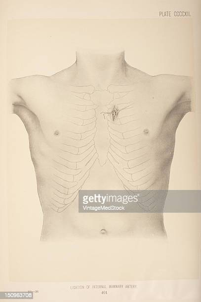 The internal mammary artery lies behind the costal cartilages parallel to and half inch from the margin of the sternum 1903 From 'Surgical Anatomy...
