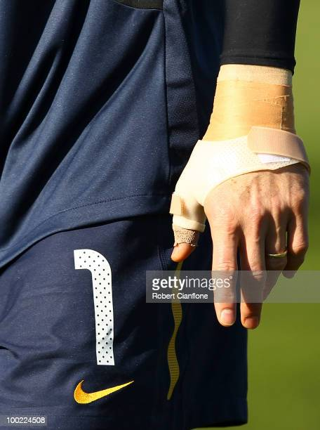The left thumb of Australian goalkeeper Mark Schwarzer is seen in a protective cast during an Australian Socceroos training session at Monash...