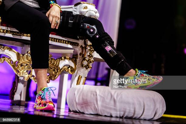 The leg of Gianna Nannini after the injury happened the Rome concert during her performs on stage at Mediolanum Forum of Assago on April 13 2018 in...