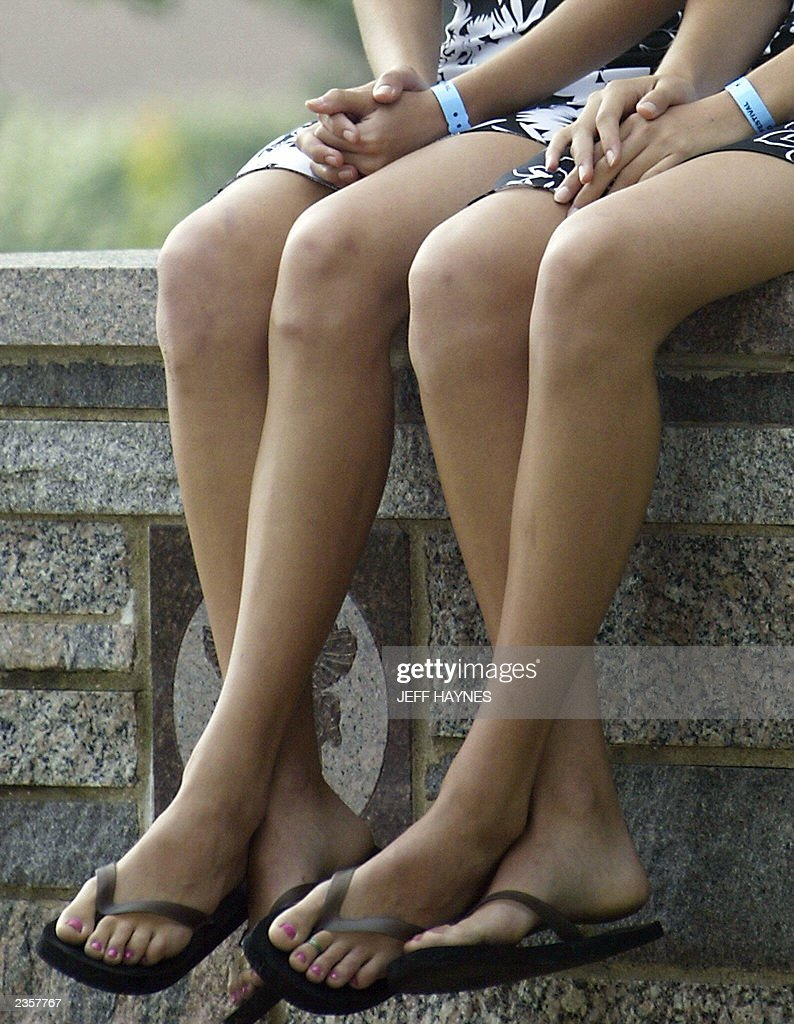 The legs of twins Anna (L) and Abby (R) Smallcombe of Kalamazoo, MI, sit on a wall before the start of the 28th Twins Day Festival parade 02 August, 2003 in Twinsburg, Ohio. The event, billed as the 'Largest Annual Gathering of Twins in the World,' is the only festival where twins worldwide gather to celebrate being of multiple birth. AFP PHOTO/Jeff HAYNES
