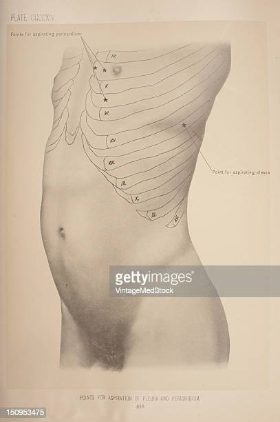 The pleura is a serous membrane which folds back onto itself to form a twolayered membrane structure 1903 From 'Surgical Anatomy The Treatise of the...