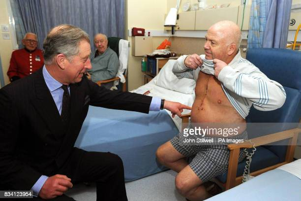 The Prince of Wales studies the scar of Anthony Stephens who underwent an aortic valve replacement at the Royal Brompton Hospital in West London...