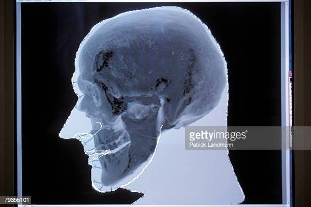 The probable shape of Otzi's face is produced and superimposed over the digital image of his actual skull at the anthropology laboratory in the...