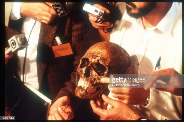 The purported skull of Josef Mengele is on display for reporters and news crews June 6, 1985 in Embu, Brazil. It is believed that notorious Nazi...