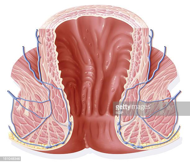 The Rectum In Frontal Section The Rectum Is Composed Of The Rectal Ampulla Upper Part And Of The Anal Canal Lower Part Delimited By The Pectinated...