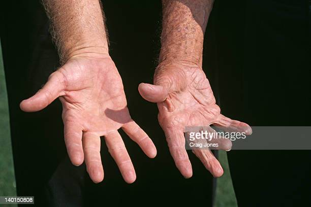 The right hands of golfers Nick Faldo and Sam Snead Virginia USA May 2000