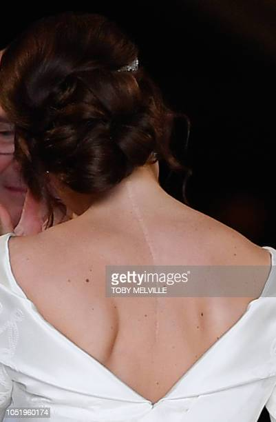 The scar on the back of Britain's Princess Eugenie of York is clearly visable as she arrives for her wedding to Jack Brooksbank at St George's Chapel...