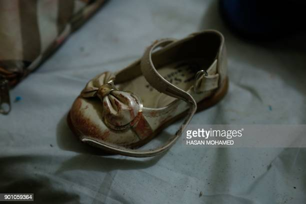 TOPSHOT The shoe of a Syrian girl who was injured in bombardment on the town of Misraba is seen at a makeshift hospital in the besieged rebelheld...