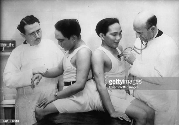 The Siamese twins Simplico und Lucio Godino Photograph About 1930