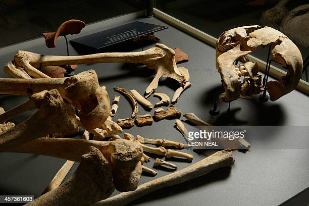 The skeleton of a man between 2460 and 2290 BC during the early Bronze Age and was buried near the world heritage prehistoric monument of Stonehenge...