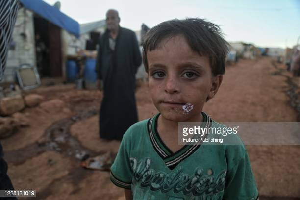 The spread of Leishmaniasis disease across children at Syrian refugee camp. PHOTOGRAPH BY Feature China / Barcroft Studios / Future Publishing