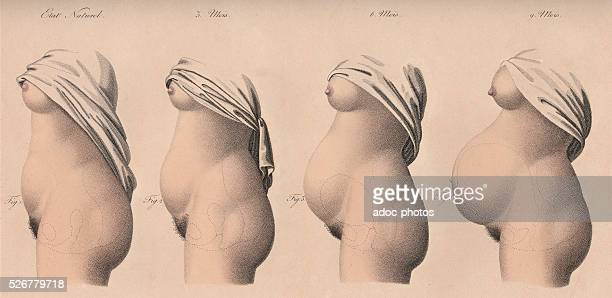 The stages of pregnancy Plate from the 'Nouvelles d��monstrations d'accouchements' by JacquesPierre Maygrier Second edition 1840