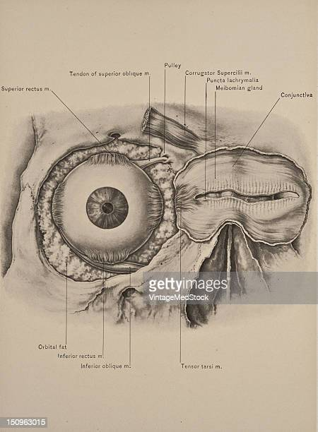 The tensor tarsi is a small muscle behind really deep porion of the orbicularis palpebrarum situated at the inner angle of the orbit behind the tendo...