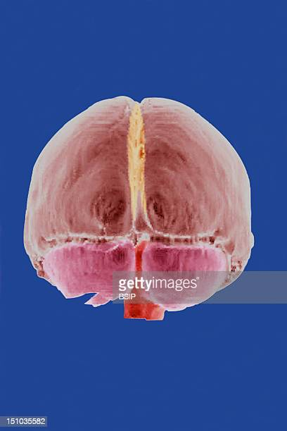 The Two Hemispheres Of The Brain Are Separated By The Falx Cerebri The Yellow Structure The Cerebellum Dark Pink Is Situate Behind The Hemispheres...
