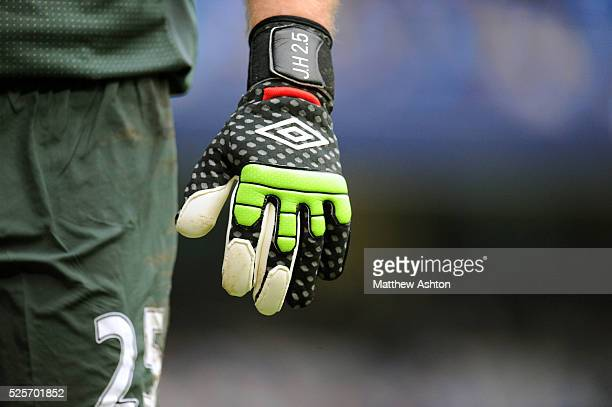 The umbro gloves of Joe Hart of Manchester City