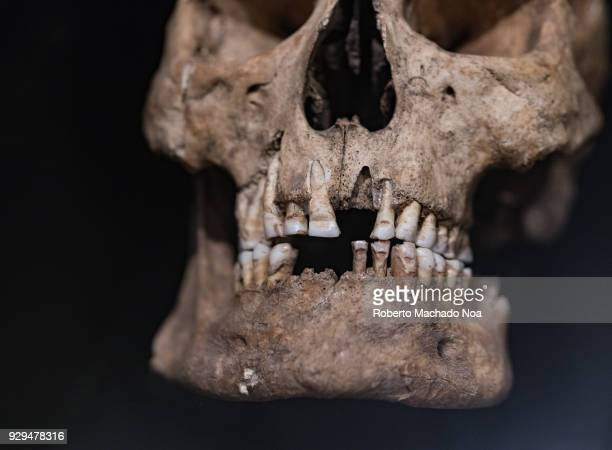 The Vikings A cranium of a male showing deliberate dental modifications The Vikings were Norse people who raided and traded across wide areas eastern...
