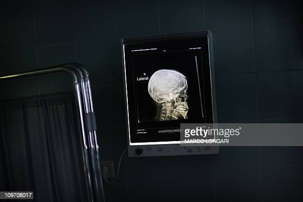 The Xray scan of a wounded antiregime demonstrator shows a bullet lodged in his brain while he is nursed at the intensive care unit at a hospital in...