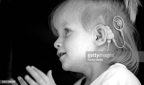The youngest cochlear implant patient in Australia 4 December 1995 AFR Picture by LOUISE KENNERLEY