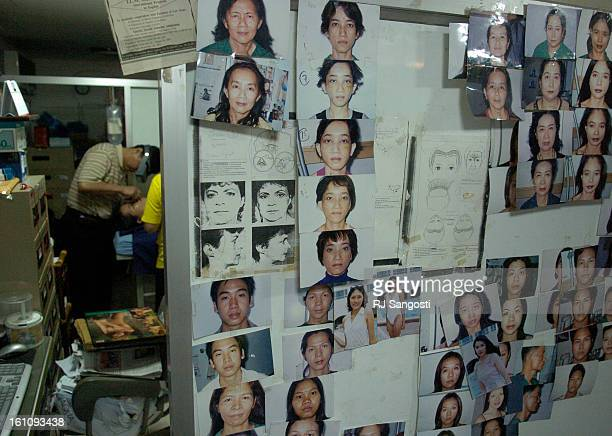 D Thep Vechavist works on some ones face at his clinic Pratunam Polyclinic in Bangkok Thailand Monday Aug 21 where their are reports that John Mark...