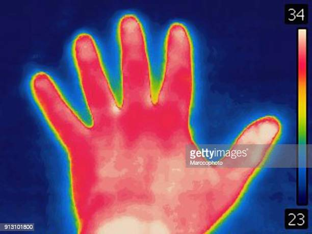 Thermal image of human hand