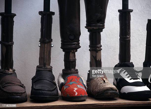 CONTENT] These prosthetics legs were about to meet their new owners the next day Already their personalities were obvious by their choice of shoe...