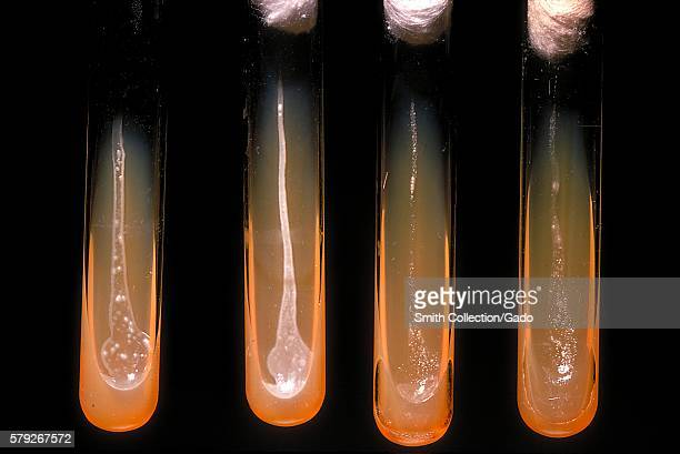 These slant cultures growing Actinomyces viscosus reveal the oxygen requirements of this bacterium 1971 Each culture represents the following...