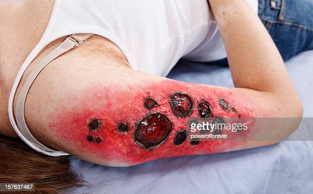 third degree charred flame burn - wounded stock photos and pictures