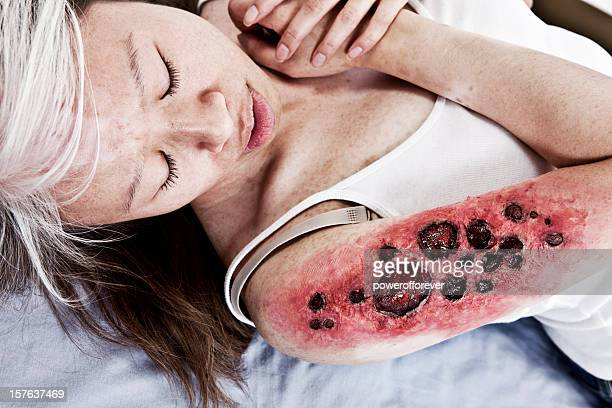 third degree charred flame burn - burn injury stock photos and pictures