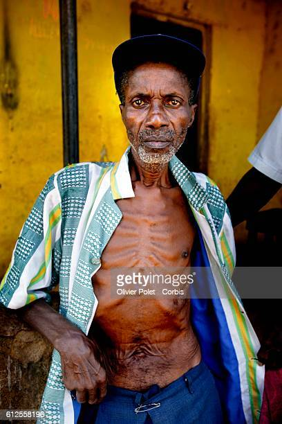 This 69 yearold man living in Freetown is infected with the HIV virus In Sierra Leone000 persons suffer from AIDS out of a total population of 5000