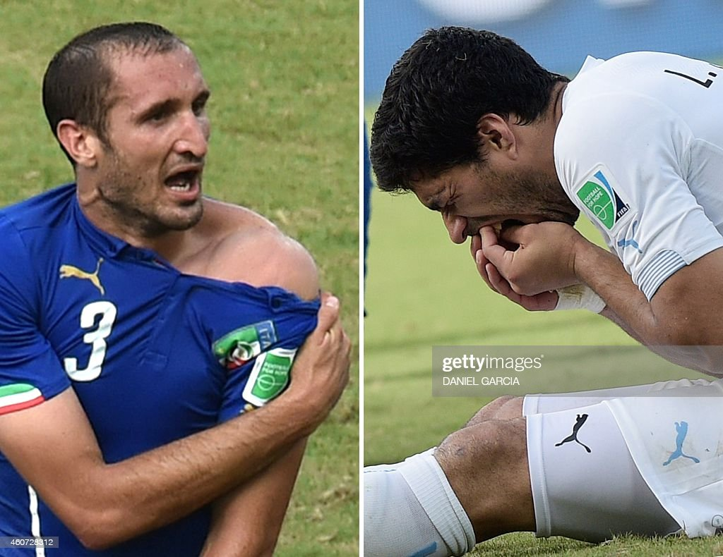 This combo of 2 photos shows Italy's defender Giorgio Chiellini (L) showing an apparent bitemark and Uruguay forward Luis Suarez (R) holding his teeth after the incident during the Group D football match between Italy and Uruguay at the Dunas Arena in Natal during the 2014 FIFA World Cup on June 24, 2014. Suarez on June 30, 2014 apologized to Italian defender Giorgio Chiellini and to the entire 'football family' for the bite for which he was penalized by the FIFA, in a message published on his official Twitter and Facebook accounts.