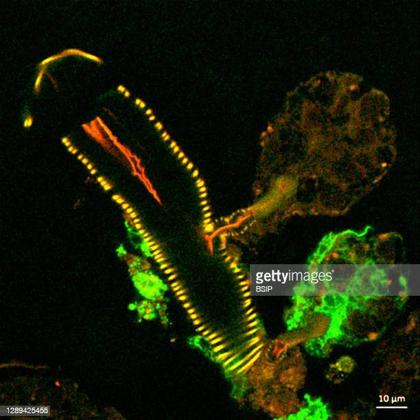 This confocal microscope image shows a cross section of a tick salivary gland infected with Langat virus . Two rounded structures on the right,...