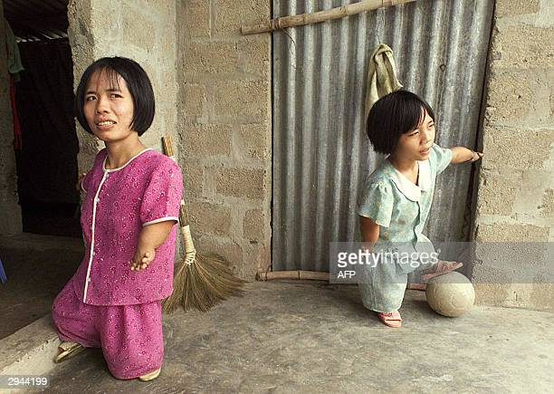 This file photo dated 22 March 2000 shows Le Thi Nhon and her younger sister Le Thi Hoa both victims of agent orange used during the Vietnam War...