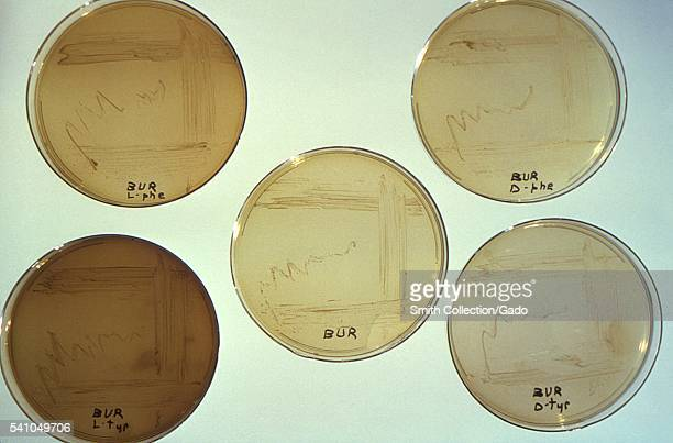 This image depicts five Petri dish culture plates that had been filled with an agarbased medium of yeast extract cysteine and ferric pyrophosphate to...
